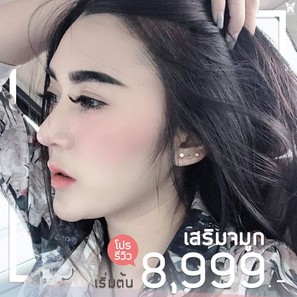 เสริมจมูก 8999